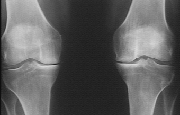 arthrose calcification du genou. Photographie source http://www.med.univ-rennes1.fr